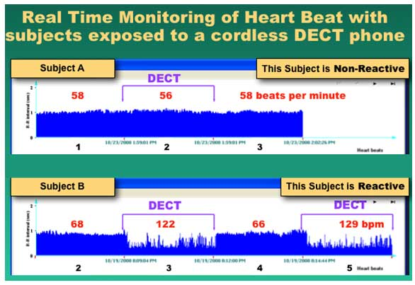 heart-beat-monitoring-chart-EndAllDisease