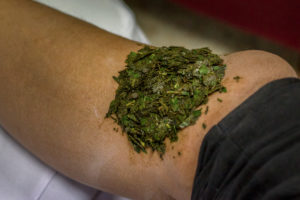 poultice for healing burns