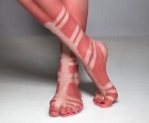 Sunburn of person wearing gladiator sandals