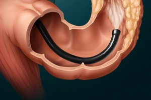 Colonoscopy - endalldisease