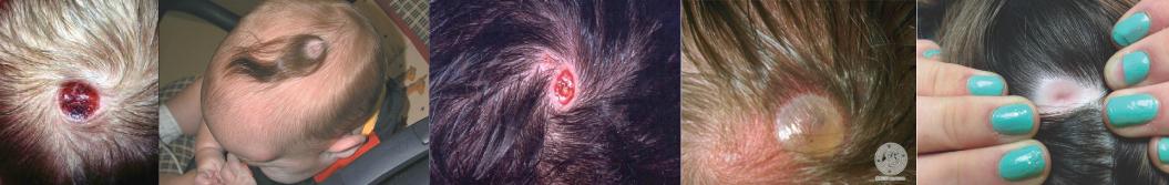 Scalp Disorder